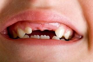 two front teeth.jpg