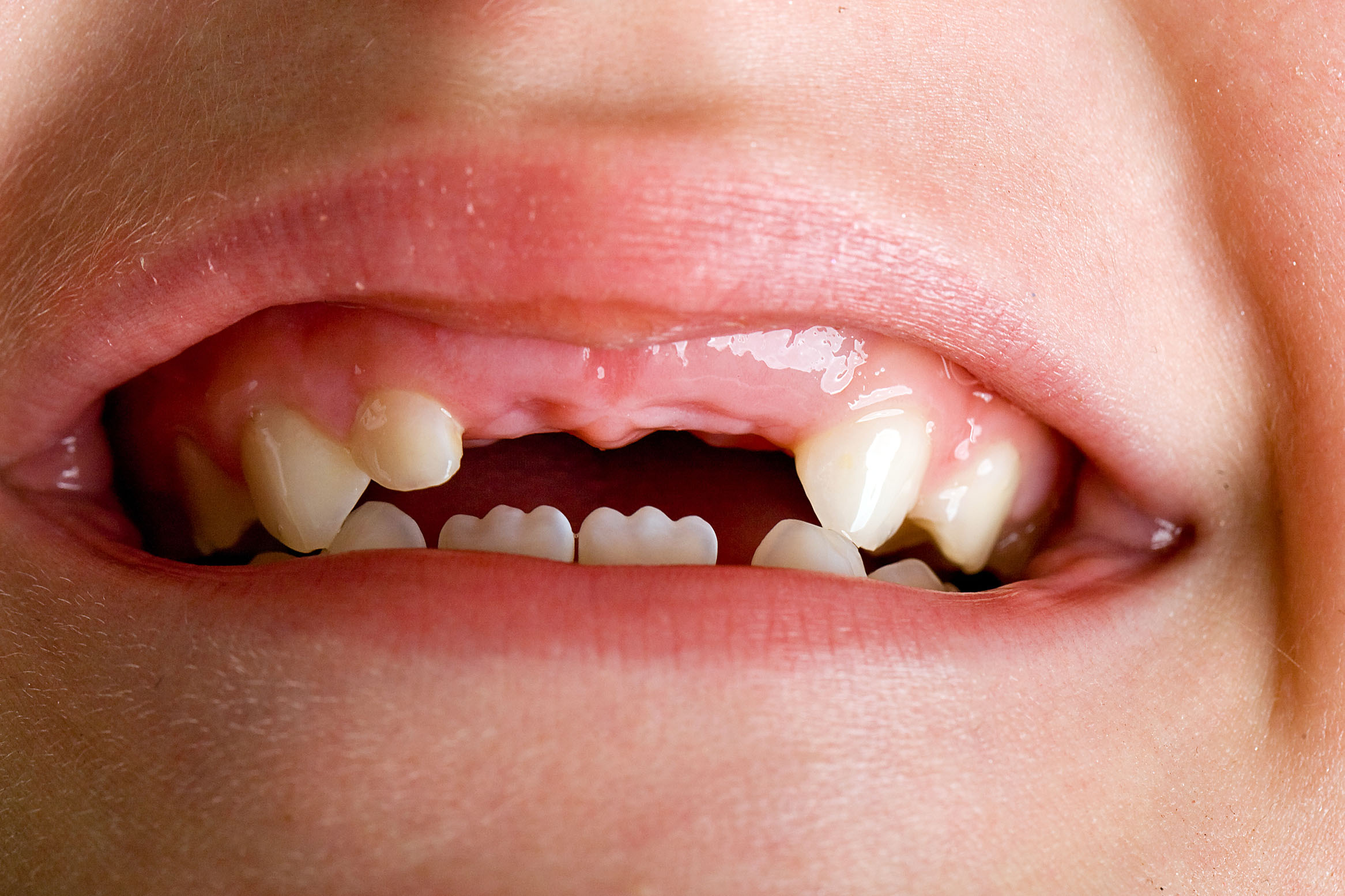 красивые зубы у детей фото сыпи